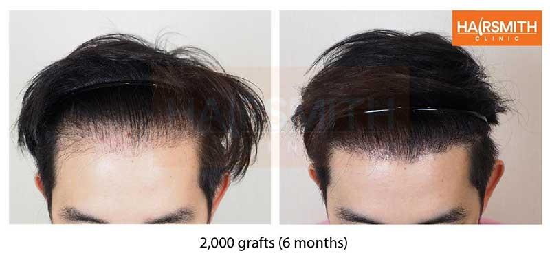 Hairsmith-Clinic
